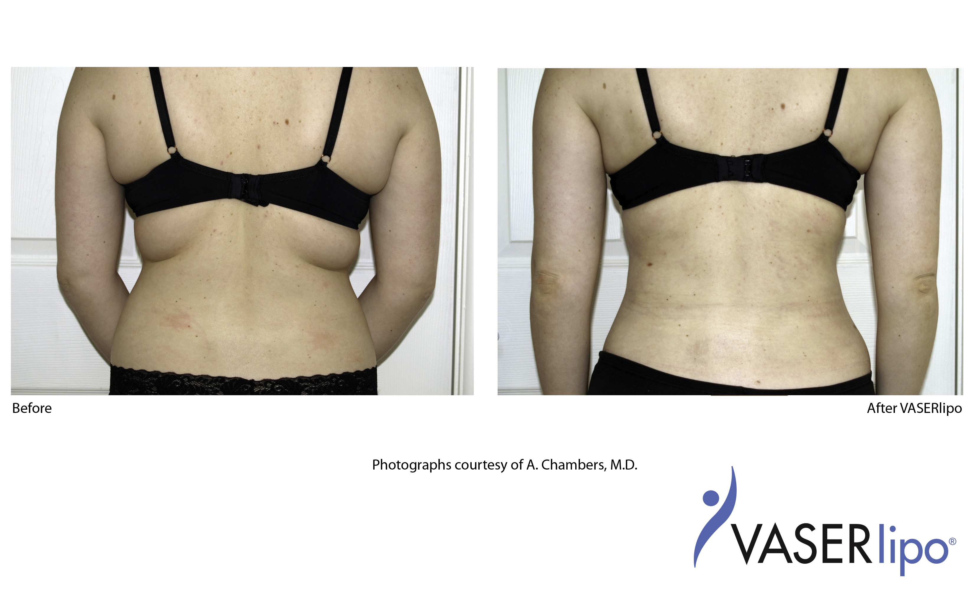 vaser laser liposuction