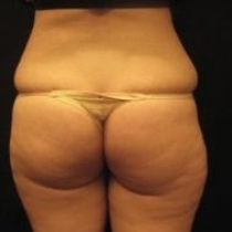 liposuction surgery