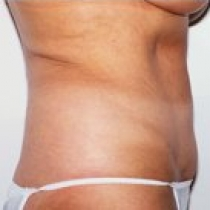 liposuction cost