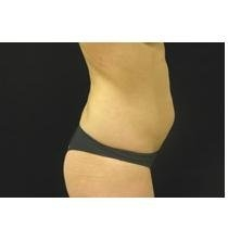 cost of liposuction