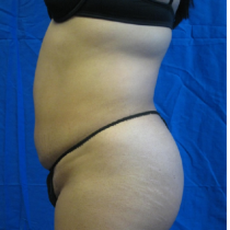 liposuction prices