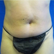 liposuction price
