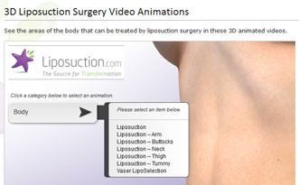 3D Liposuction Surgery Video Animations