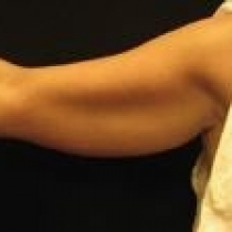 Arms Before Louis Cole