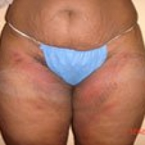 Outer Thighs After Elliece S. Smith 2
