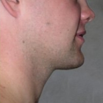 Face and Neck After Garrett Crabtree