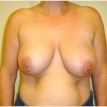 Breasts After Before Michael Gray 2