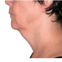 Face and Neck Before Kimberly Finder