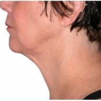 Face and Neck After Kimberly Finder