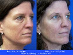 Replacing facial fat naturally
