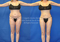 lipo before & after 1