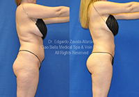 lipo before & after 2