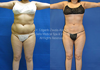 lipo before & after 3