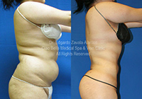 lipo before & after 4
