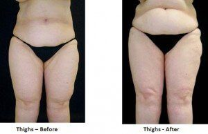 Lipedema Patients Are Turning to Tumescent Liposuction for Relief
