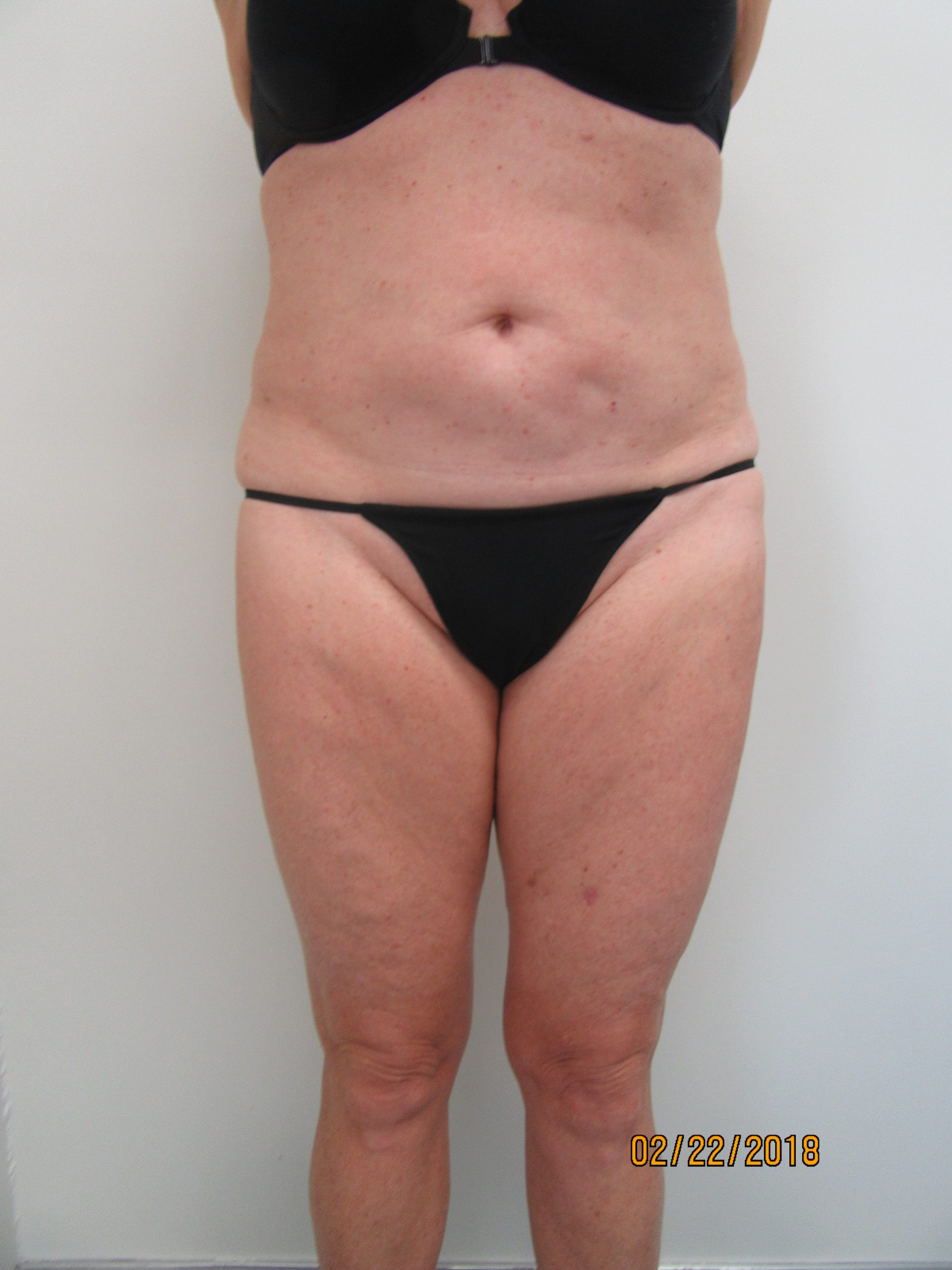 Case 0112 510827, Lipo Abd, IT, IK – before