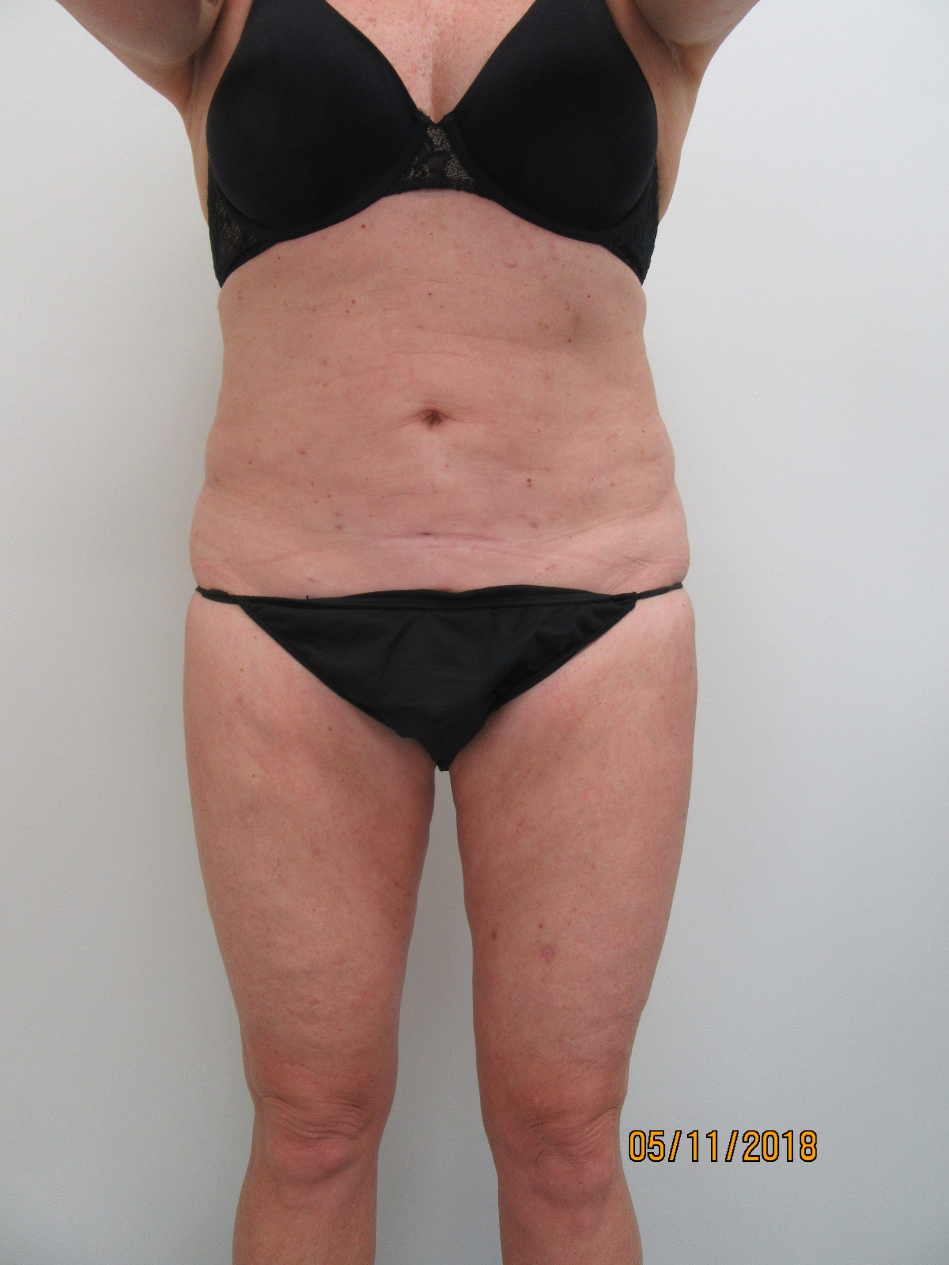 Case 0112 510827, Lipo After Abd, Before IT,IK