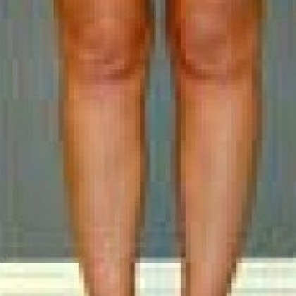 Liposuction - Legs / Ankles