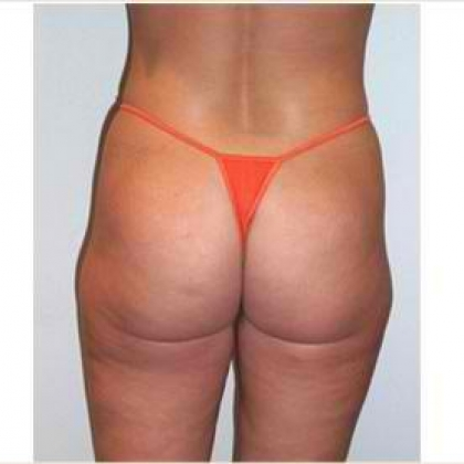 Liposuction - Buttocks