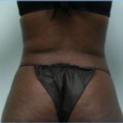 Liposuction - Hips