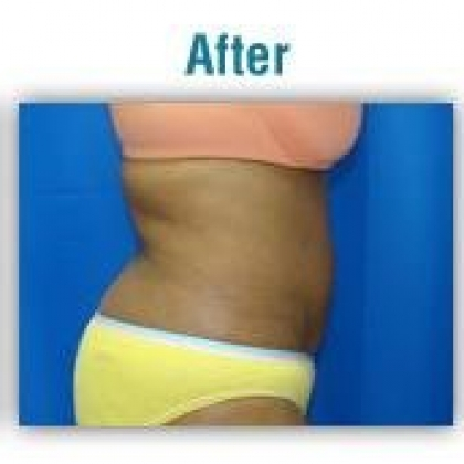 Liposuction - Abdomen / Waist / Hips / Outer Thighs