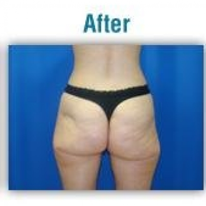 Liposuction - Hips / Outer Thighs / Buttocks