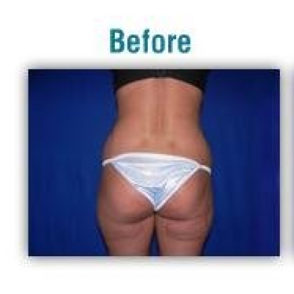 Liposuction - Waist / Hips / Outer Thighs