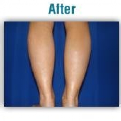 Liposuction - Calves