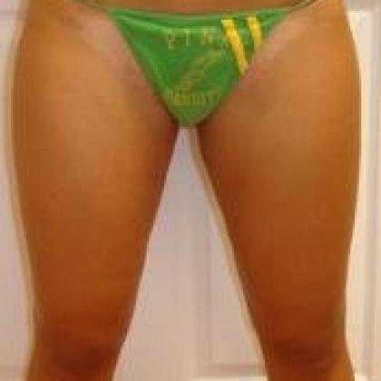 Liposuction - Inner Thighs