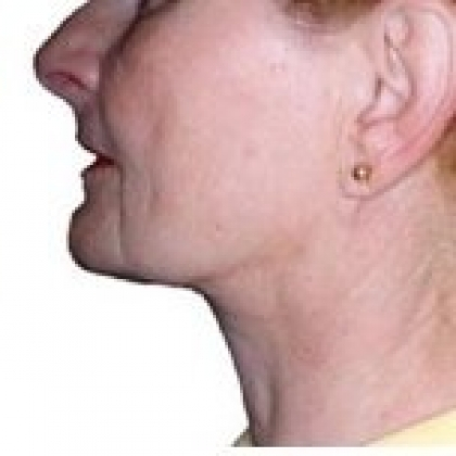 Liposuction - Face / Neck