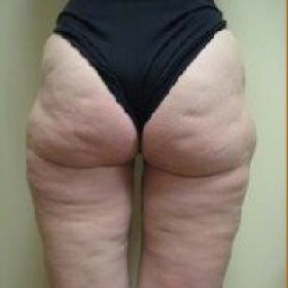 Liposuction - Waist / Hips / Outer Thighs / Inner Thighs