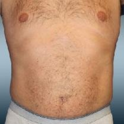 Liposuction - Abdomen