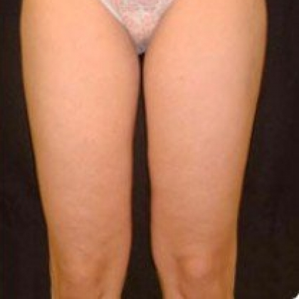 Liposuction - Anterior Thighs
