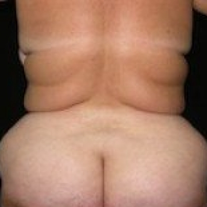 Liposuction - Hips