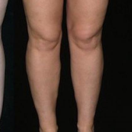Inner Knees