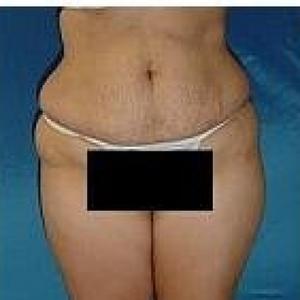 Liposuction - Abdomen / Waist / Hips / Outer Thighs