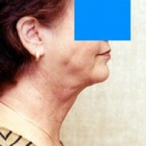 Neck - Face