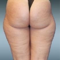 Buttocks - Buttocks