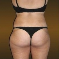 Liposuction - Hips / Outer Thighs
