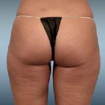 Liposuction - Inner Thighs