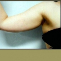Liposuction - Arms