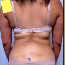 Liposuction - Back