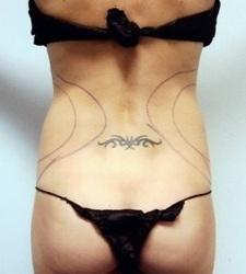 Liposuction - Back