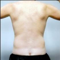 Liposuction - Flanks