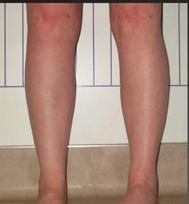 Legs/Calves/Ankles - Legs / Ankles
