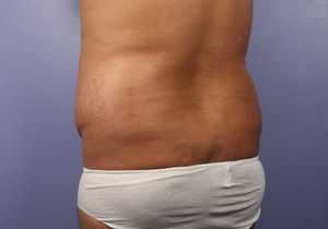 Liposuction - Flanks
