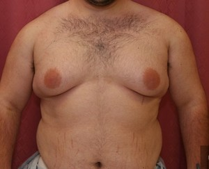 Male Breast Reduction - Breasts