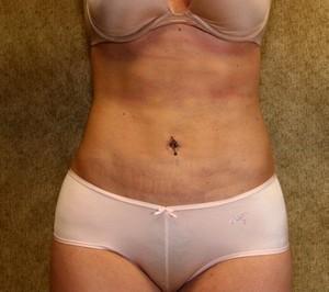 Liposuction - Abdomen