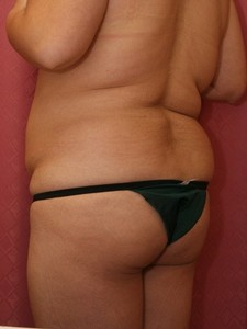 Liposuction - Buttocks