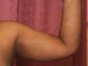 Liposuction - Arms